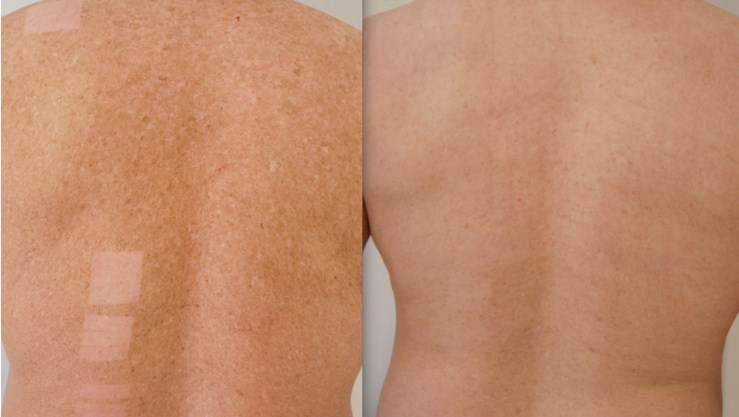 Before and after freckle removal back