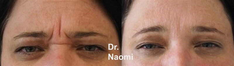 Before and after frown line injections