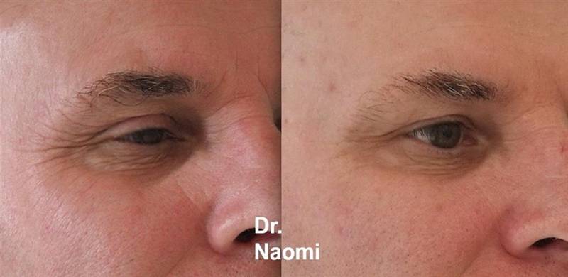 Antiwrinkle injections eyes male before and after