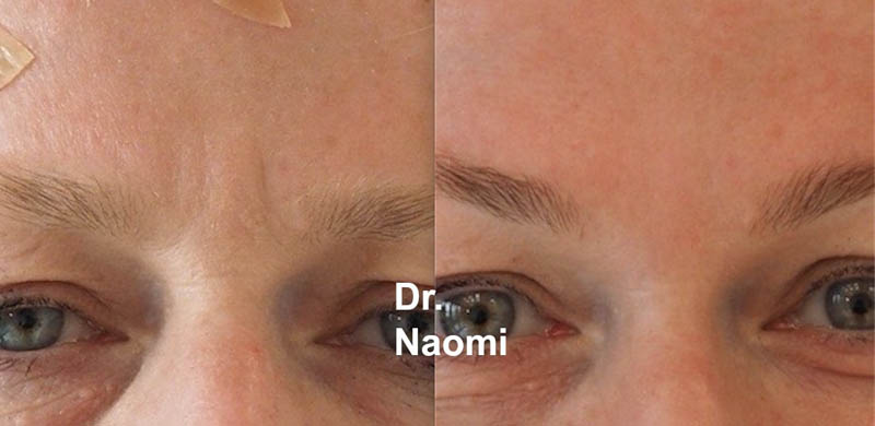 Before and after antiwrinkle injections frown