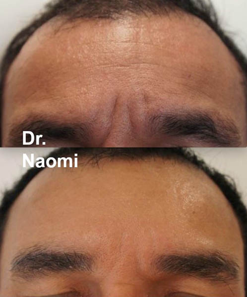 Before and after antiwrinkle injections and filler frown lines