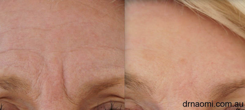 Before and after anti wrinkle injections frown
