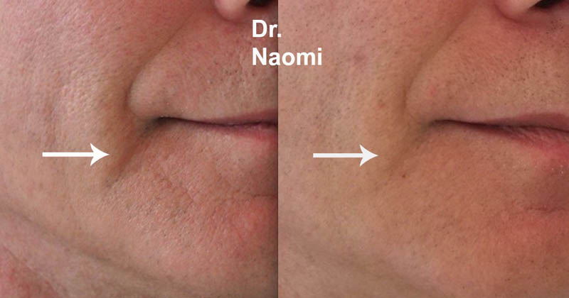 Before and after marionette dermal filler