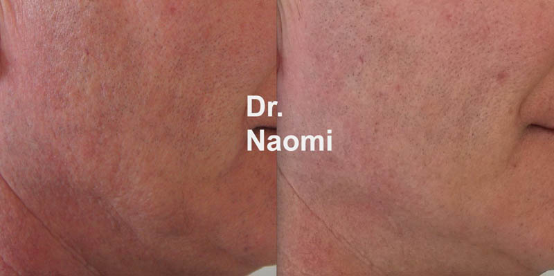 Before and after red skin treatment with laser