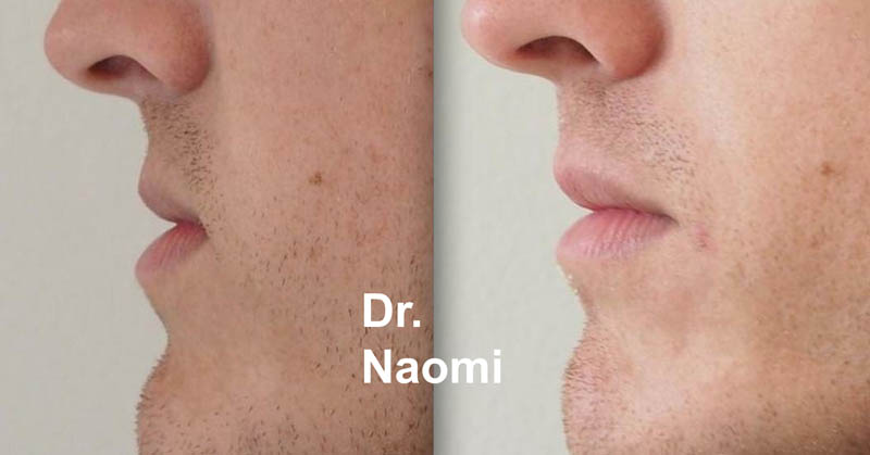 Male lip fillers before and after