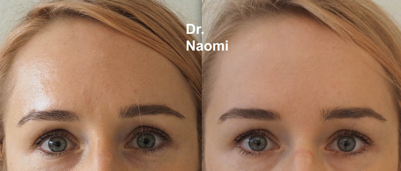 Before and after anti-wrinkle injections frown
