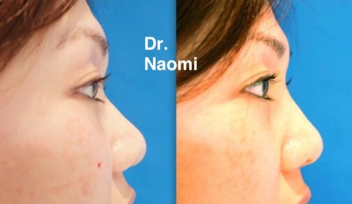 New Treatment: Hiko Nose Threads - Best Clinic Sydney for Dermal Fillers