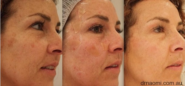 Before during and after laser mole removal