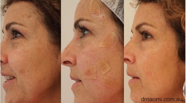 Before and after laser for age spots