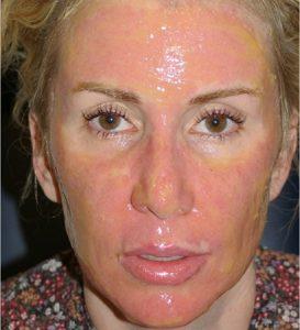 The latest cosmetic procedures 2018