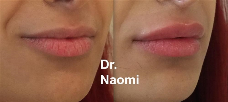 Before and after dermal fillers for lips sydney