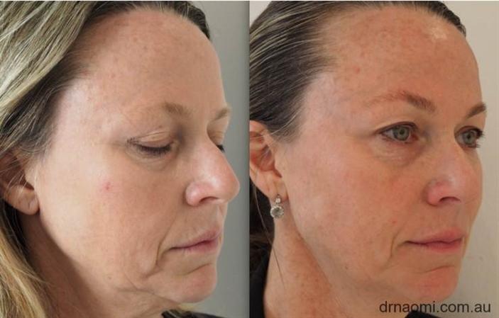 Liquid facelift with dermal filler