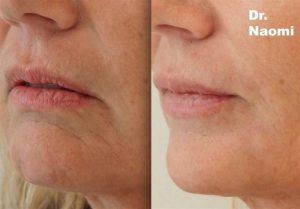 Chin filler for ageing face
