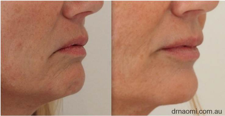 Before and after dermal filler in lower face for sagging jowls and downturned mouth