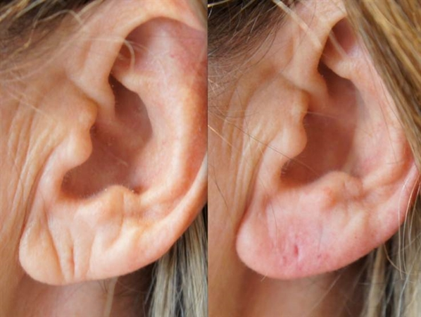 before and after dermal fillers ears