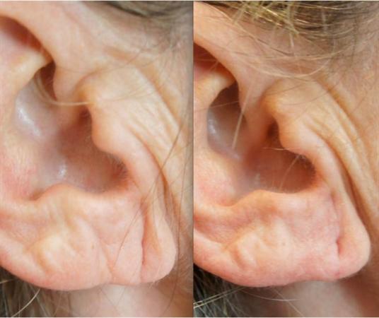 ear dermal fillers for wrinkles