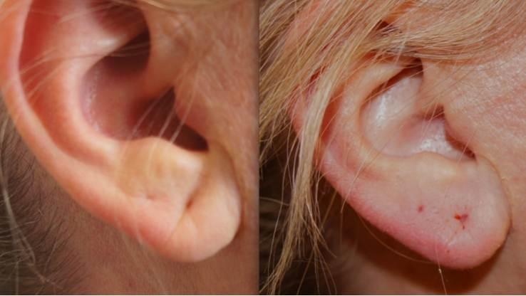ear fillers