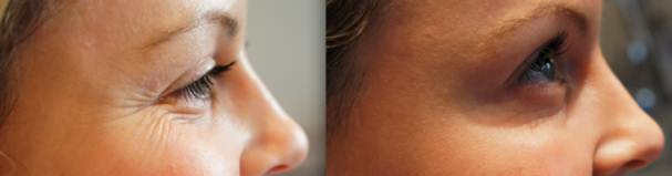 eye wrinkle injections