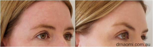 Before and after chemical brow lift