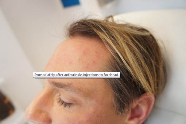 immediately after forehead wrinkles treatment