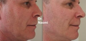 Before and after laser for rosacea