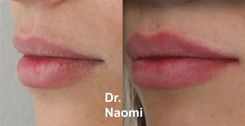 Before and after dermal filler lips natural result