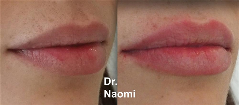 Before and after dermal filler half ml