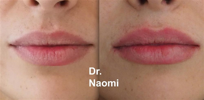 Before and after dermal filler lips subtle