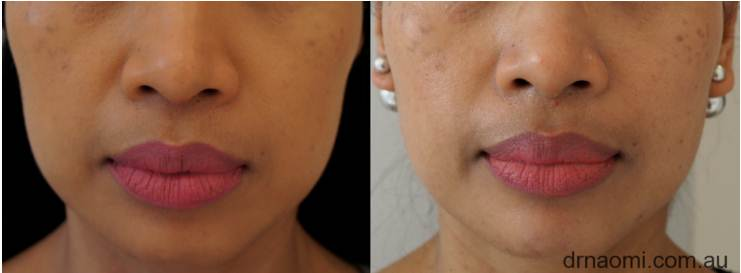 Before and after 1 treatment of jawline reshaping with injections