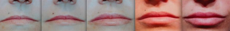 Gradually growing thin lips with dermal filler