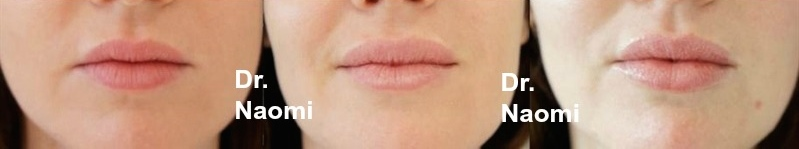 Lip iaugmentation different proportions