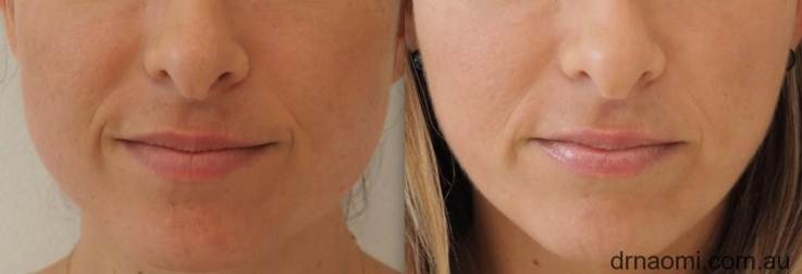 Jawline slimming symmetry correction