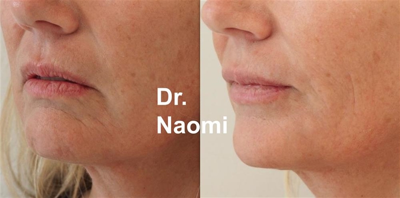 Dermal filler treatment for ageing lips