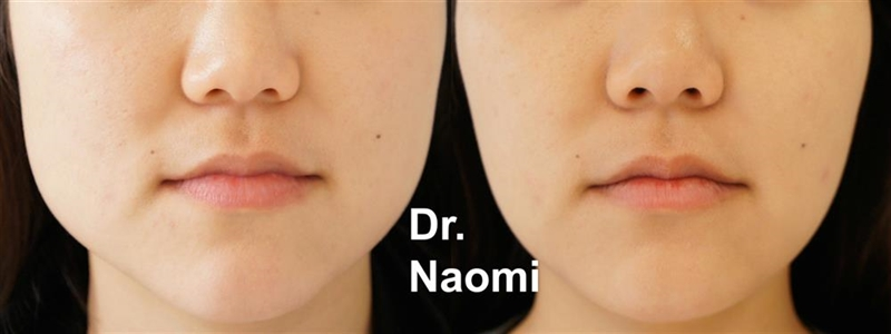 Before and after face slimming masseters