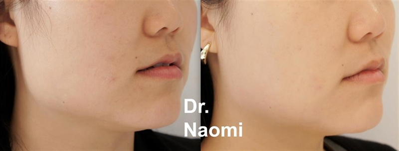 Masseter reduction before and after