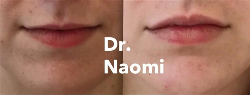 Before and after dermal filler for small upper lip