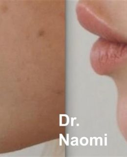 dermal fillers chin