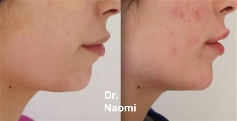 Before and after dermal filler chin
