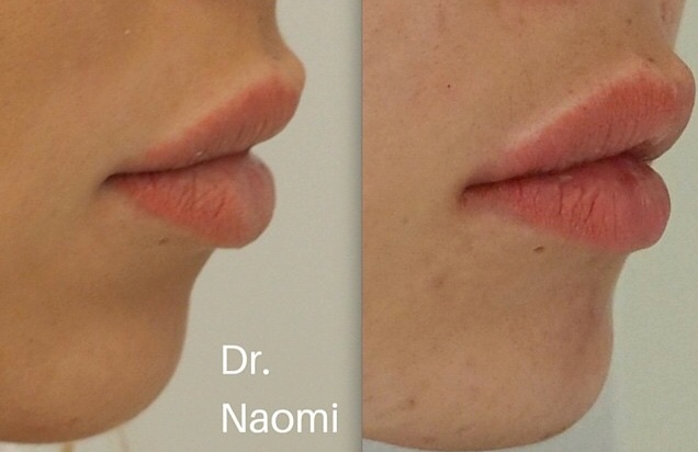 Before and after dermal filler to chin and lips