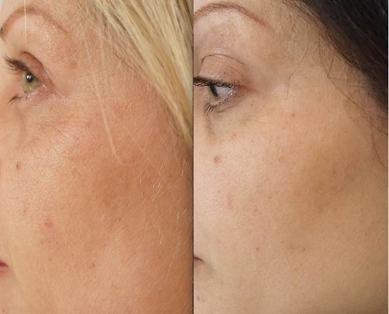 Skin Boosters For Face Best Clinic Sydney For Dermal Fillers