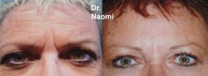 Before and after wrinkle injections and dermal filler to forehead