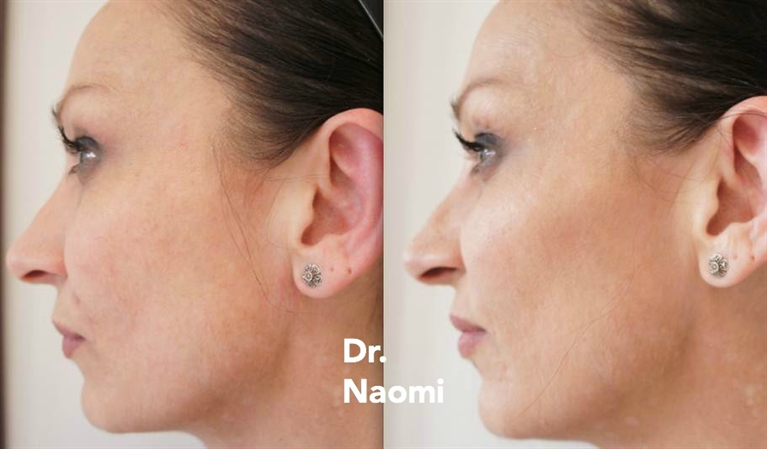 Before and after filler in cheeks