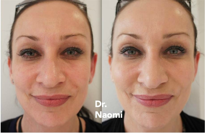 Before and after cheek fillers 2 mls
