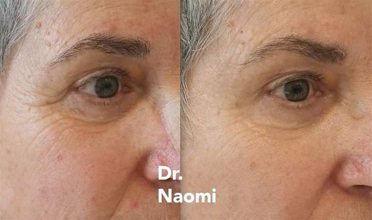 Injection for eye wrinkles