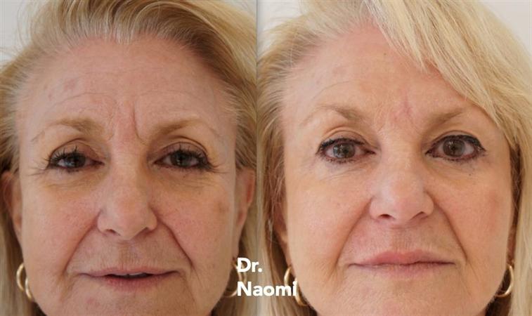 Liquid Facelift Sydney: Dermal Fillers for Facial Volume