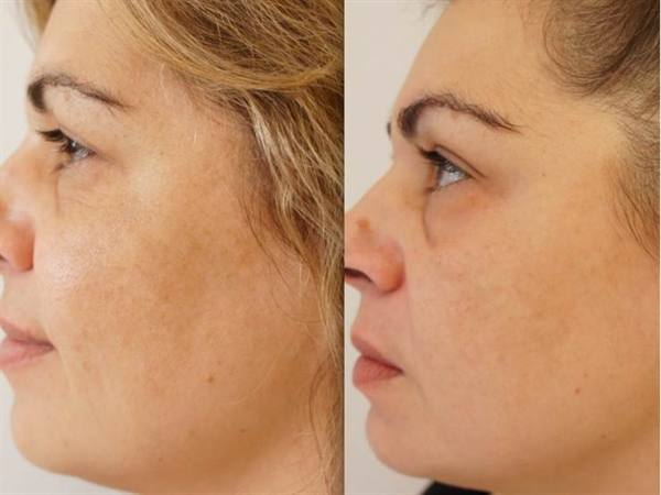 Before and after treatment for melasma pigmentation