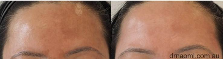 Before and after melasma treatment forehead