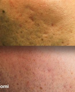 Before and after treatment for Acne scarring