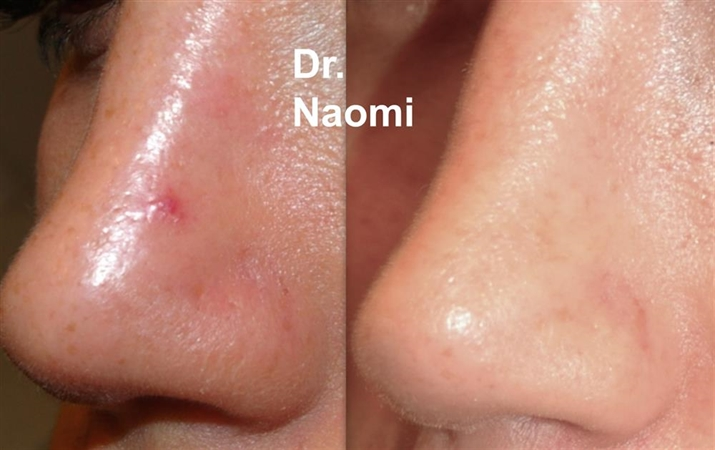 Laser for red vein removal