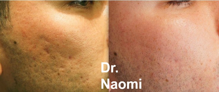 Dermal Filler for Acne Scars